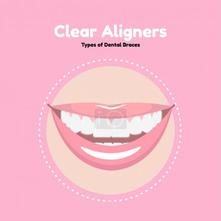 Illustration for Types of Dental Braces. Vector flat illustration of smile with alighers on the teeth. - Royalty Free Image