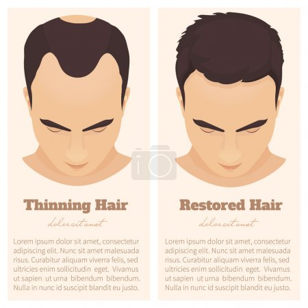 Male pattern baldness design template
