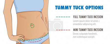 Tummy tuck, abdominoplasty infographic banner