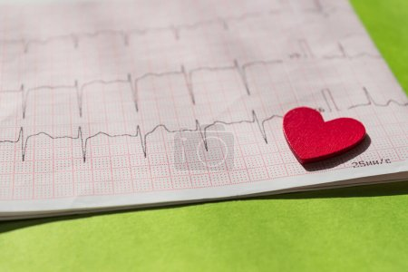 Photo for Close up of an electrocardiogram in paper form vith red wooden heart. ECG or EKG paper on green  background.  medical and healthcare concept. - Royalty Free Image