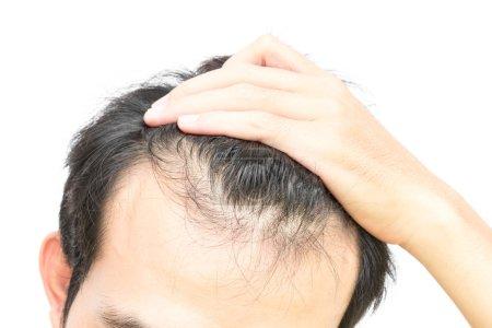 Photo pour Problème de perte de cheveux grave CloseUp jeune homme cheveux perte concept ou soins de santé shampooing produit sur fond blanc - image libre de droit