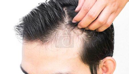 Photo pour Problème de perte de cheveux grave CloseUp jeune homme pour la notion de perte de cheveux - image libre de droit