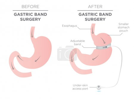 Gastric Band Weight Loss Surgery Before and After...