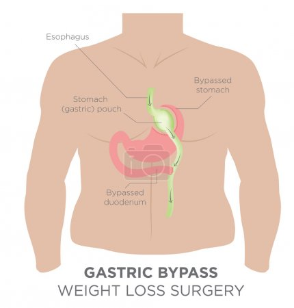 Gastric Bypass for Weight Loss