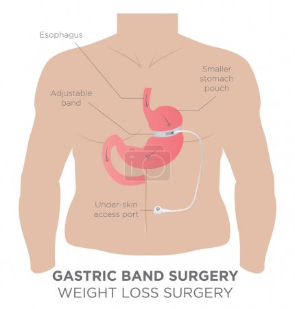 Gastric Band Weight Loss Surgery with Human Torso...
